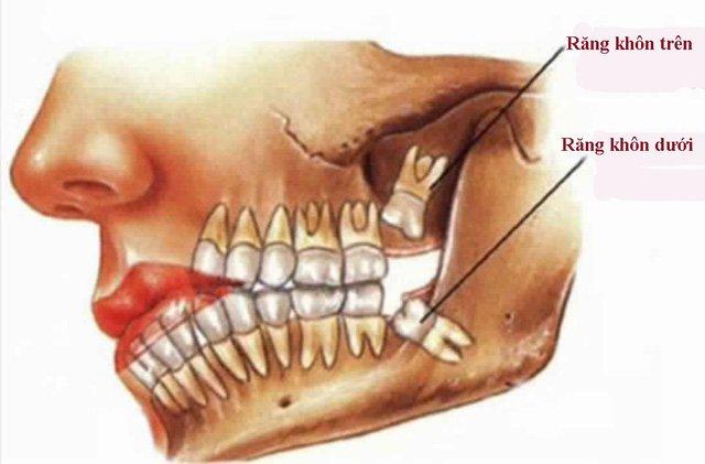 Hỏi: Nhổ răng khôn hàm trên hay hàm dưới nguy hiểm hơn? Nha khoa Thùy Anh