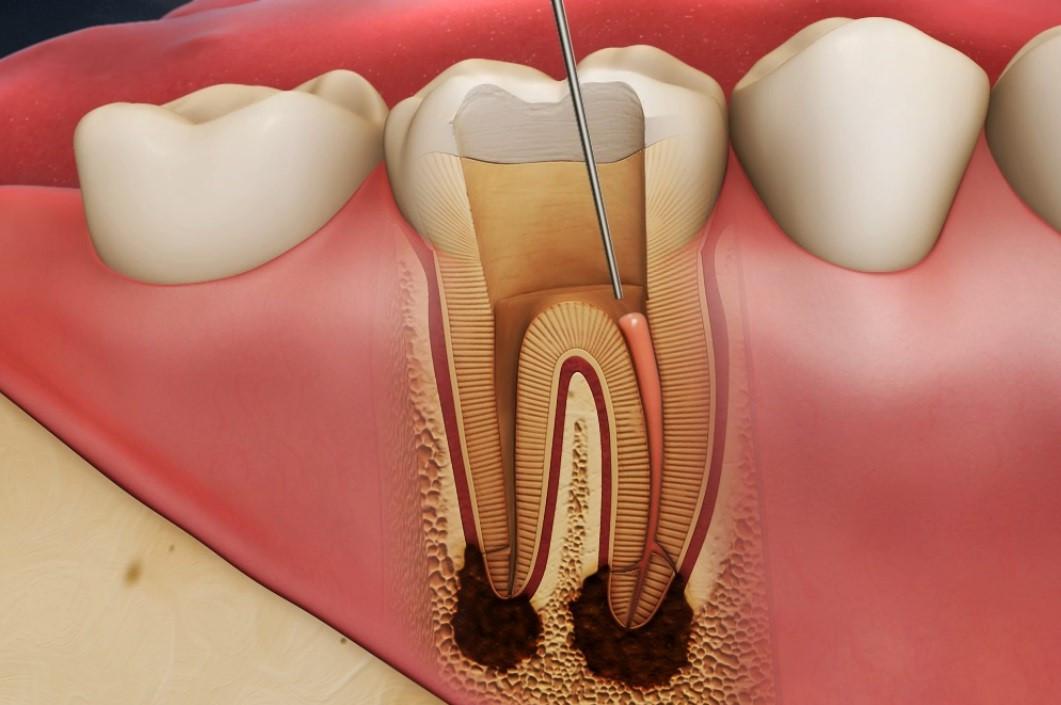 Răng bị chết tủy: Dấu hiệu nhận biết và cách điều trị hiệu quả