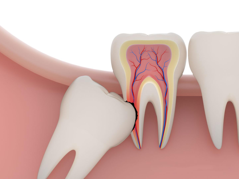 Răng khôn mọc lệch có nên nhổ không? Nha khoa Thùy Anh