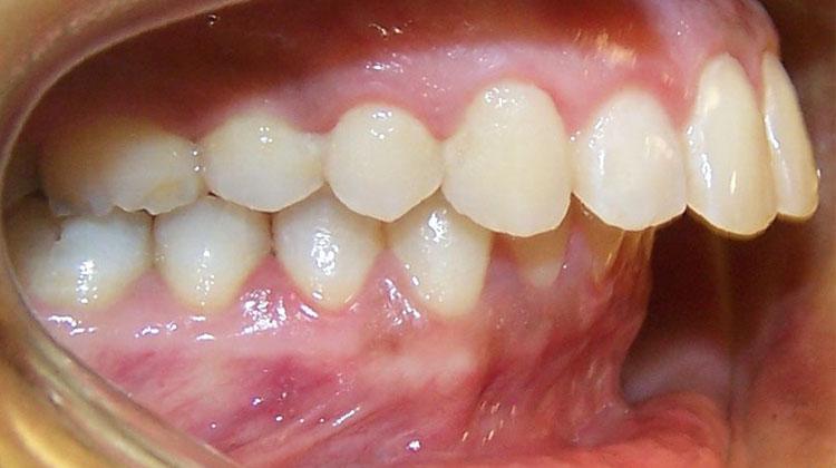 Trường hợp nào không nên thực hiện bọc răng sứ thẩm mỹ? Nha khoa Thùy Anh