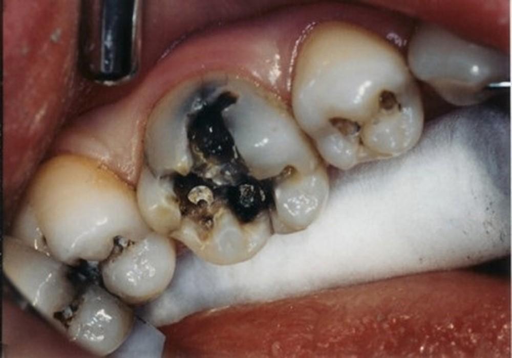 Các cấp độ bệnh lý tủy răng và phương pháp khắc phục hiệu quả - nha khoa  Thùy Anh - nhakhoathuyanh