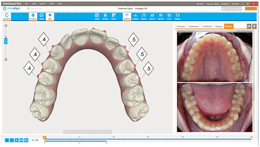 Những điều cần biết về kỹ thuật Clincheck – Niềng răng biết trước kết quả