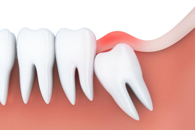 Dấu hiệu cảnh báo nên nhổ răng khôn bạn cần nắm rõ – nha khoa Thùy Anh