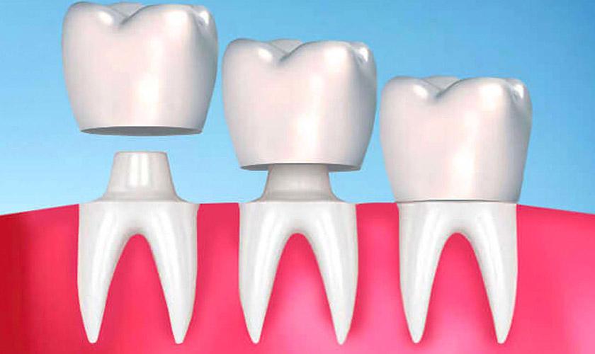 Răng giả bị lung lay: Nguyên nhân và cách khắc phục hiệu quả – nha khoa Thùy Anh