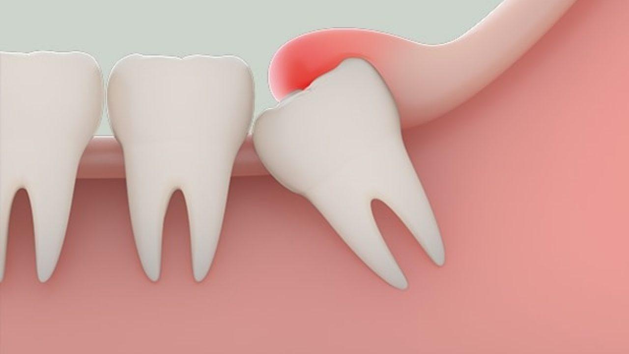 Phân biệt triệu chứng mọc răng khôn và bệnh lý về răng miệng