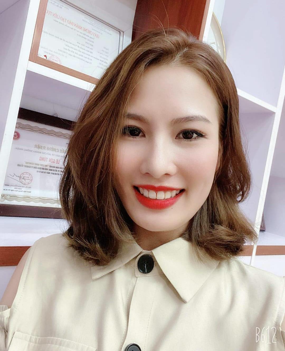 Niềng răng hô, lệch lạc – Hành trình tìm lại nụ cười thanh xuân của cô dược sĩ xinh đẹp