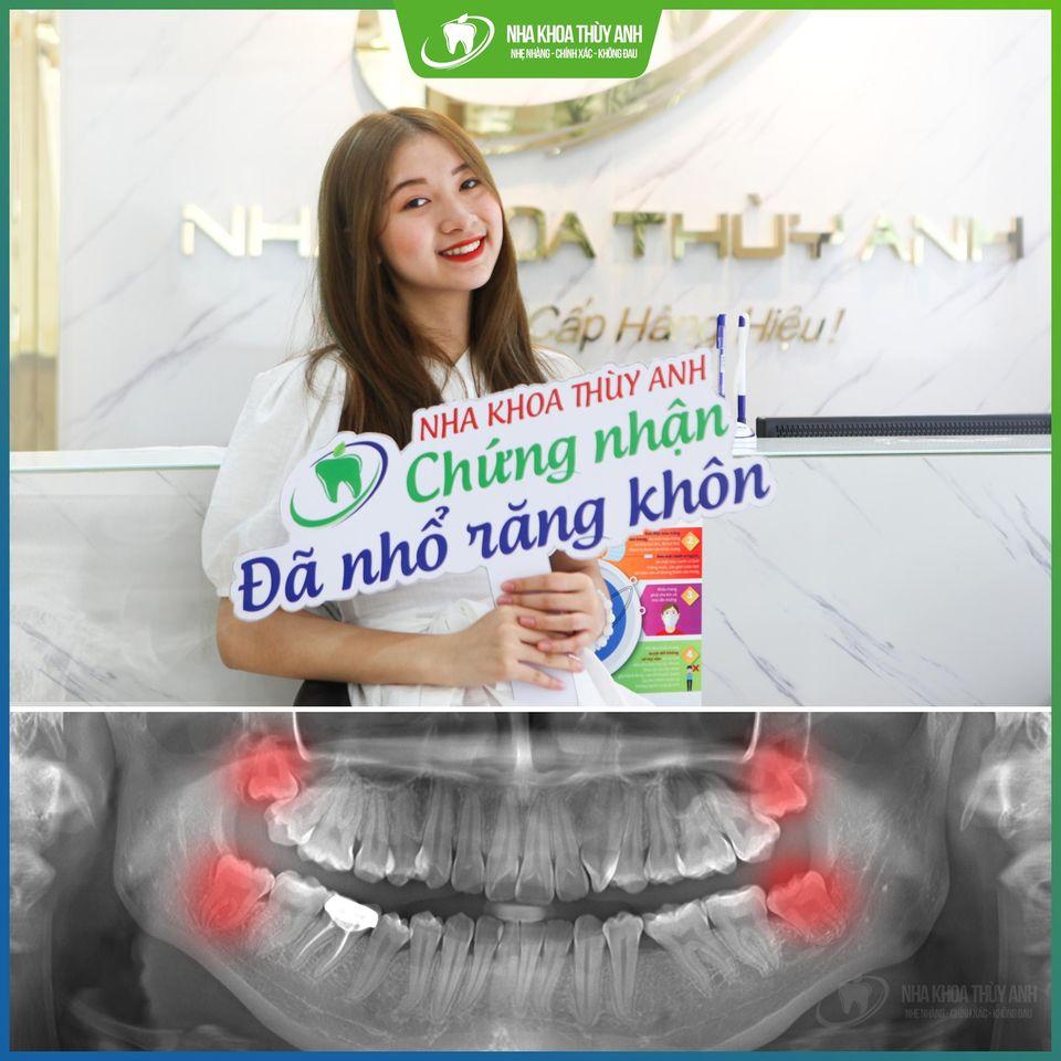 Điều kiện để có thể nhổ răng khôn – Nha khoa Thùy Anh