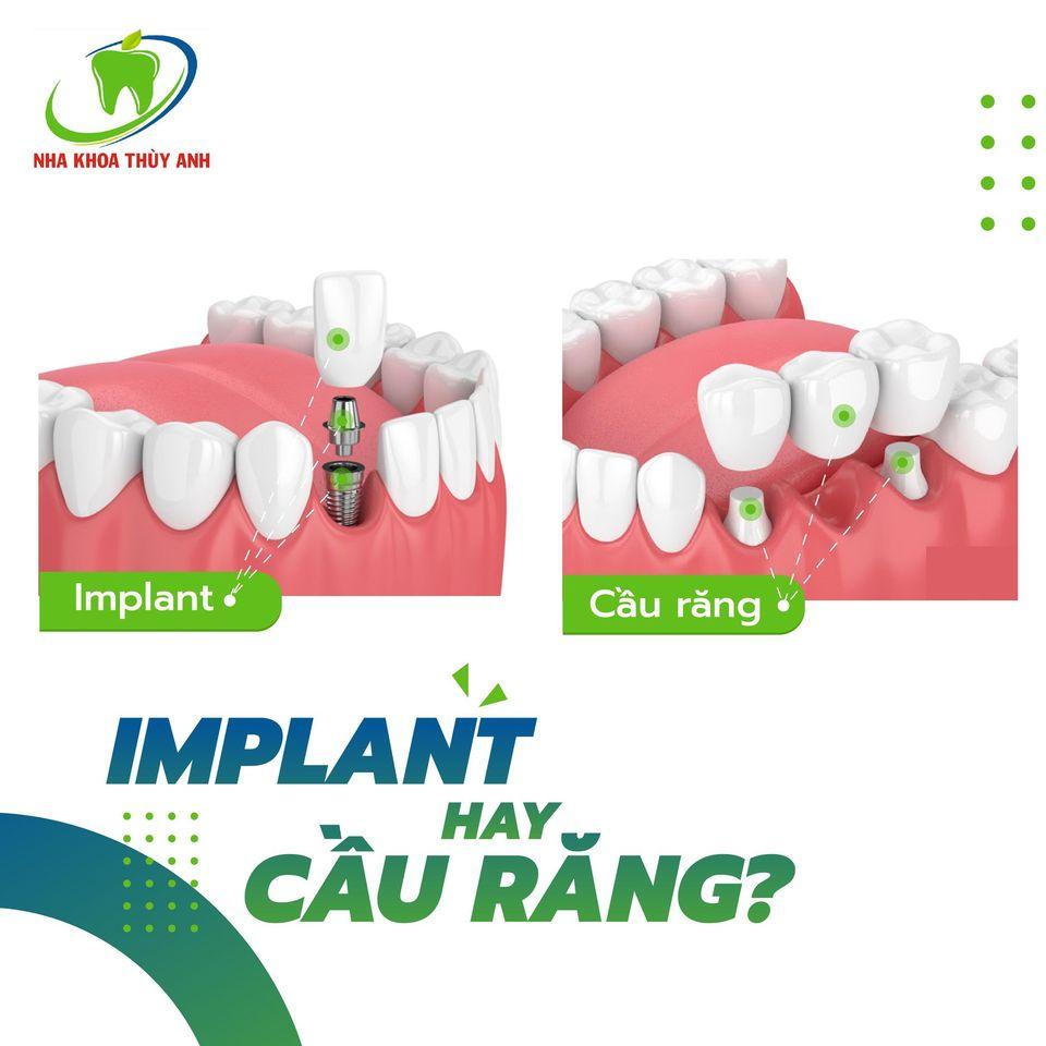 Trường hợp nào nên dùng cầu răng thay cấy ghép implant – nha khoa Thùy Anh