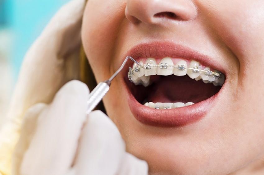 """Tổng hợp các khí cụ khi niềng răng bạn buộc phải """"kết bạn"""" – nha khoa Thùy Anh"""