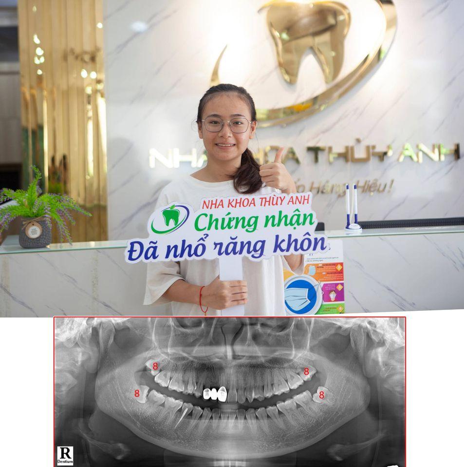 Nhổ nhiều răng khôn cùng lúc nên hay không? Nha khoa Thùy Anh
