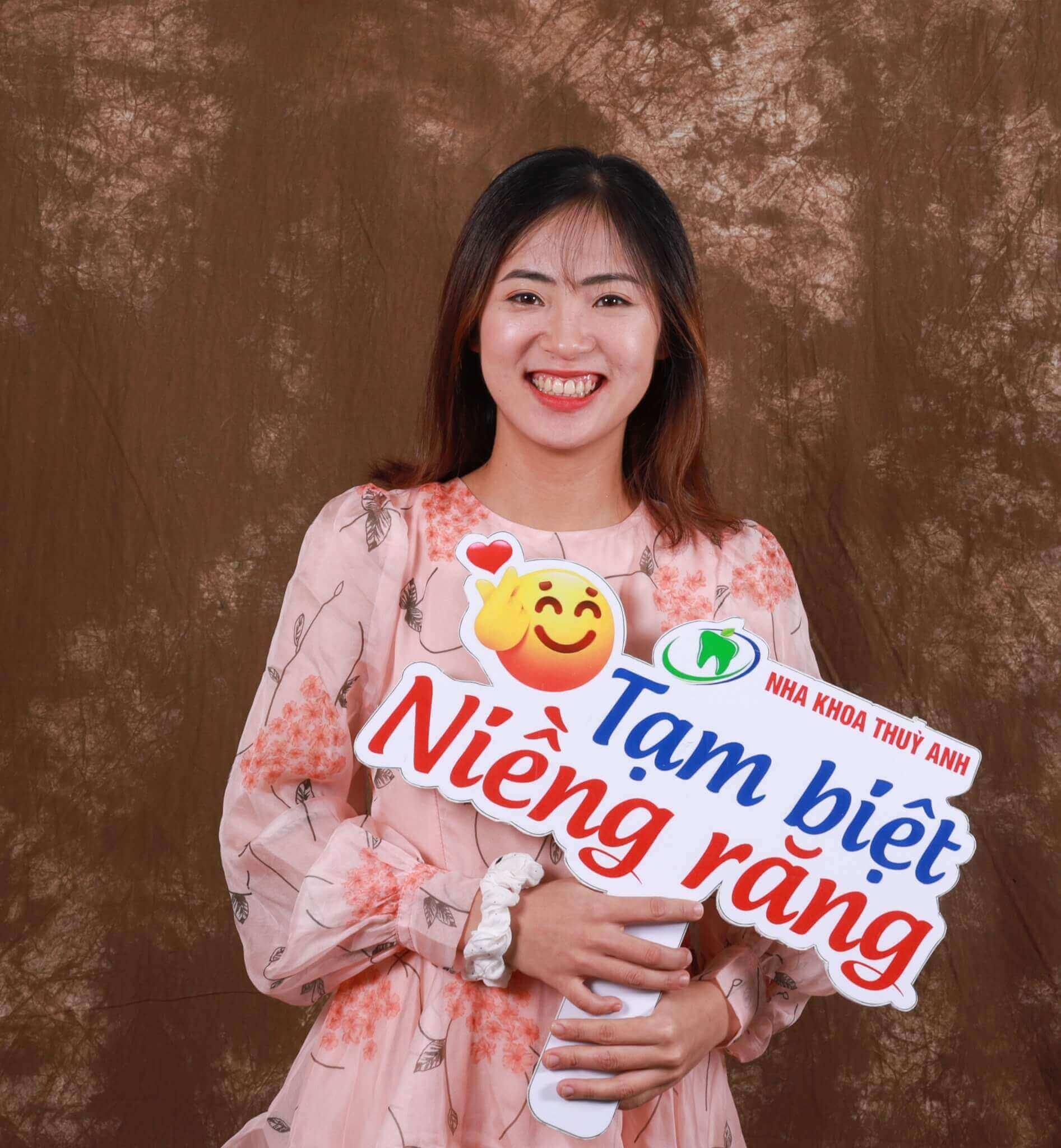 Quyết tâm và kiên định với lựa chọn của mình, Thuỳ Trang đã có được một nụ cười như ý sau 2 năm 3 tháng niềng răng hô, lệch lạc