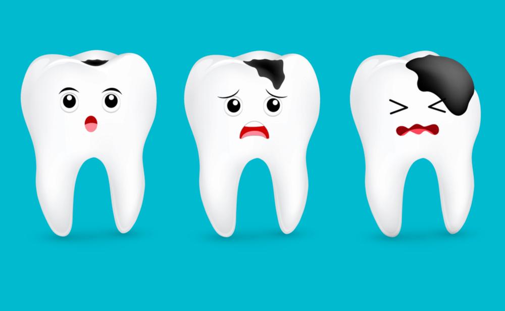 Cảnh báo: Những vị trí trên răng dễ bị sâu cần hết sức lưu ý – Nha khoa Thùy Anh