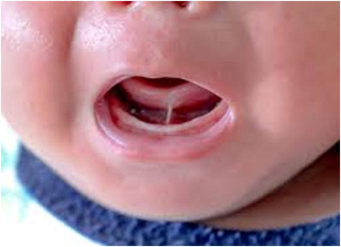 Dính phanh lưỡi và mewing: Những vấn đề bạn cần hết sức lưu ý