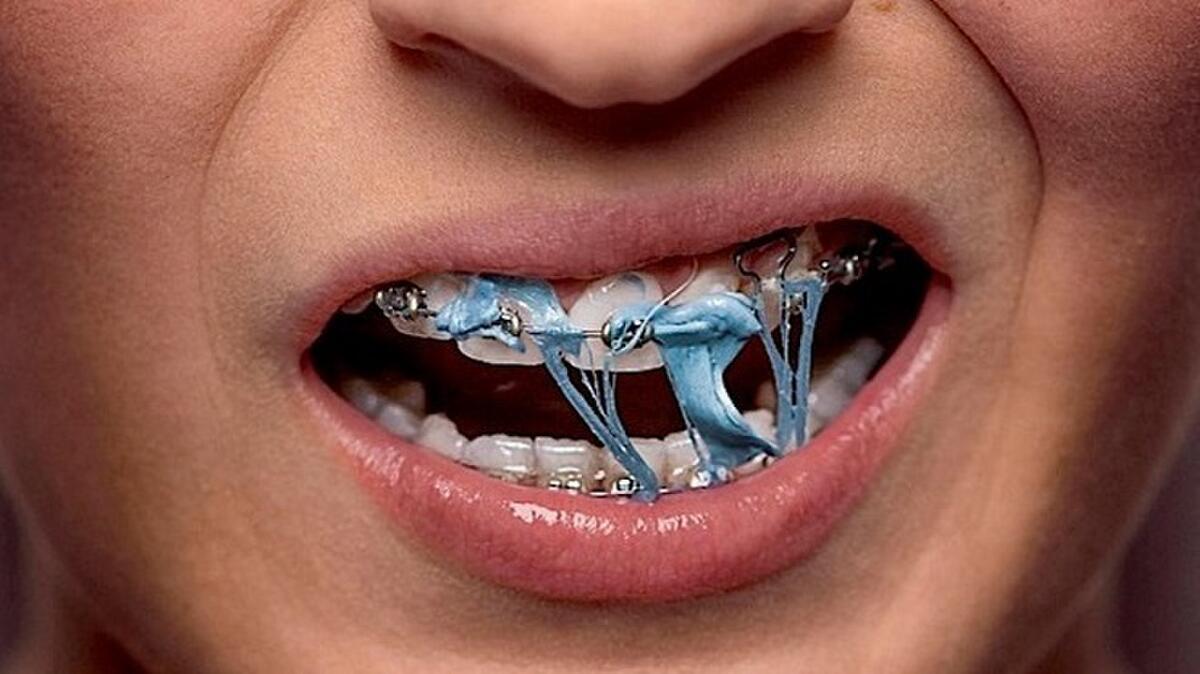 12 điều chỉ những người niềng răng mới thấu – nha khoa Thùy Anh