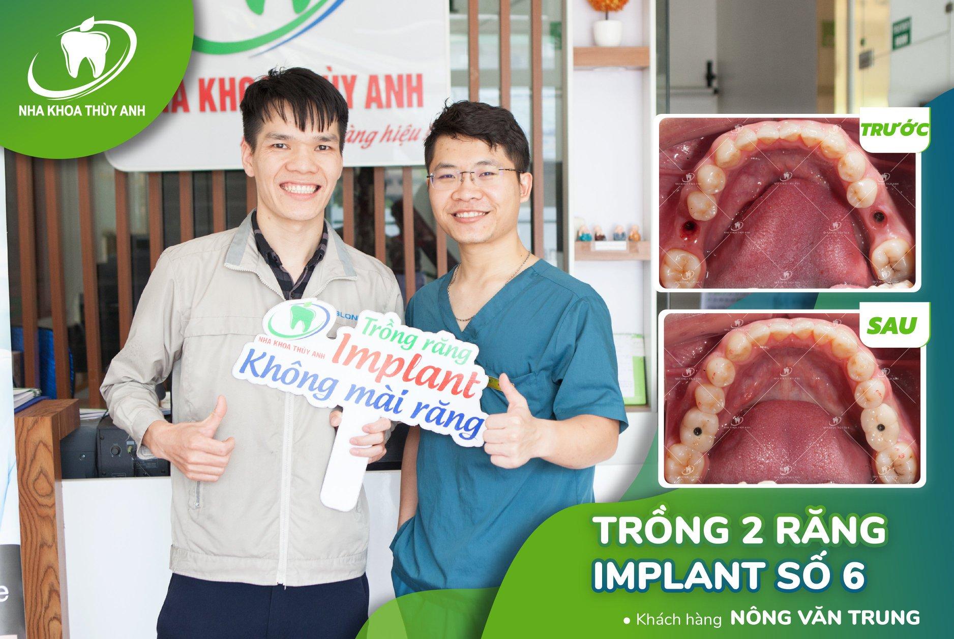 Cấy ghép implant sau bao lâu có thể lắp cầu răng sứ? Nha khoa Thùy Anh