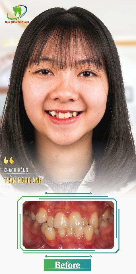 Sau khi niềng răng gương mặt thay đổi như thế nào? Nha khoa Thùy Anh