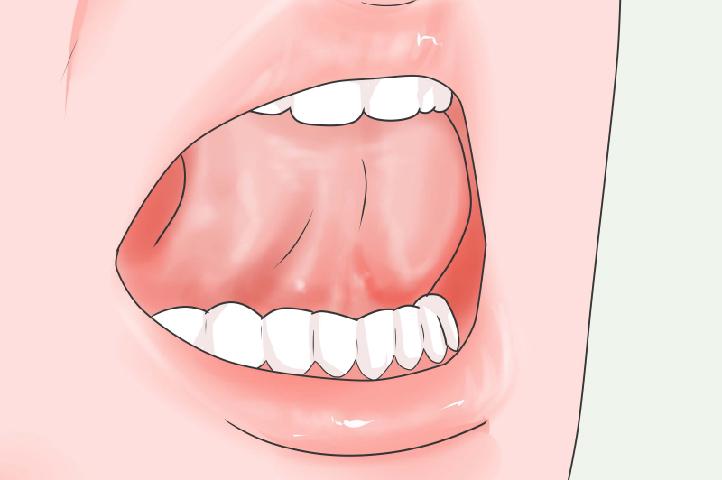 Hướng dẫn tư thế đúng của lưỡi khi tập Mewing – nha khoa Thùy Anh