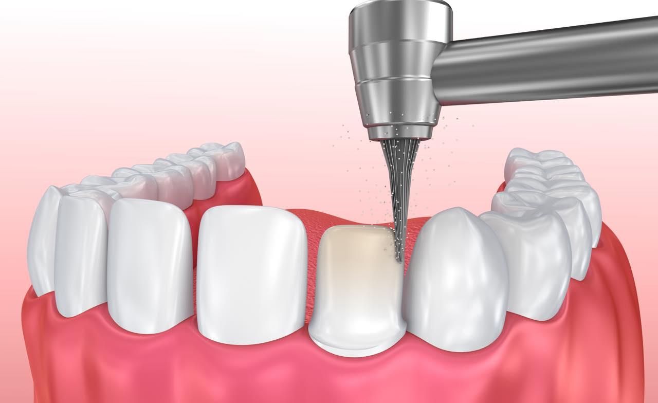 Mài răng khi làm răng sứ thẩm mỹ: Những vấn đề bạn cần nắm rõ