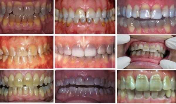Răng bị nhiễm Tetracycline khắc phục bằng cách nào thẩm mỹ nhất?