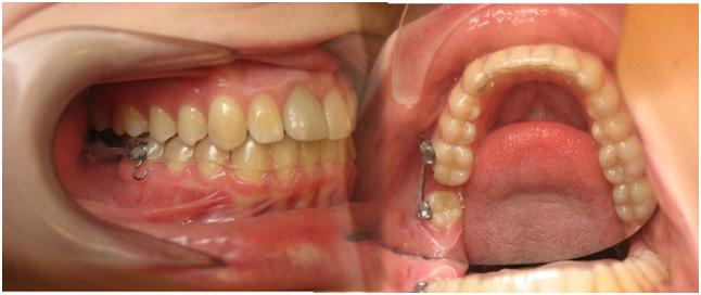 Thay thế răng mất bằng răng thật nhờ chỉnh nha – một giải pháp vạn lợi ích