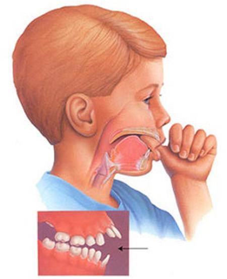 Thói quen xấu ở trẻ khiến bộ răng bị ảnh hưởng bố mẹ cần đặc biệt lưu tâm