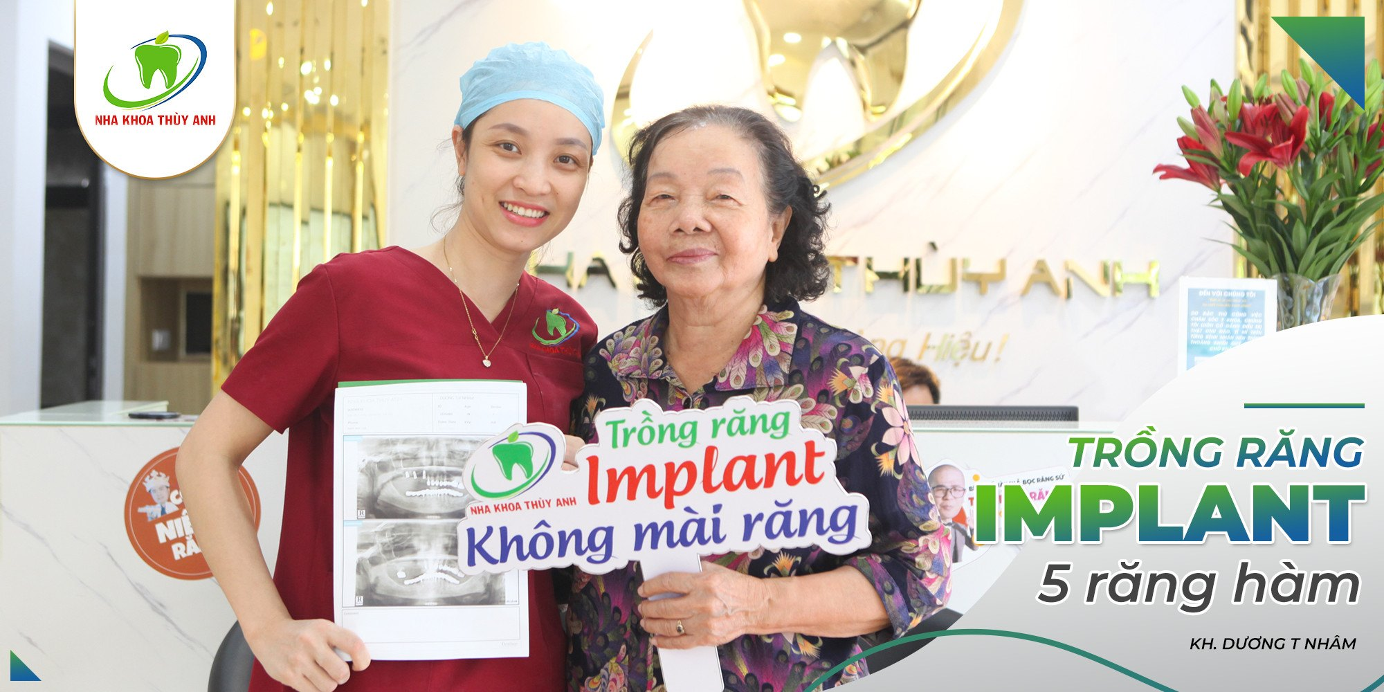 Địa chỉ trồng răng implant uy tín khu vực quận Đống Đa, Hà Nội