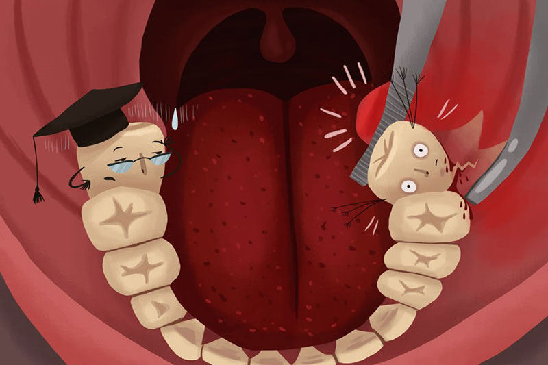 Nhổ răng khôn bao lâu thì lành thương? Cần kiêng những gì?