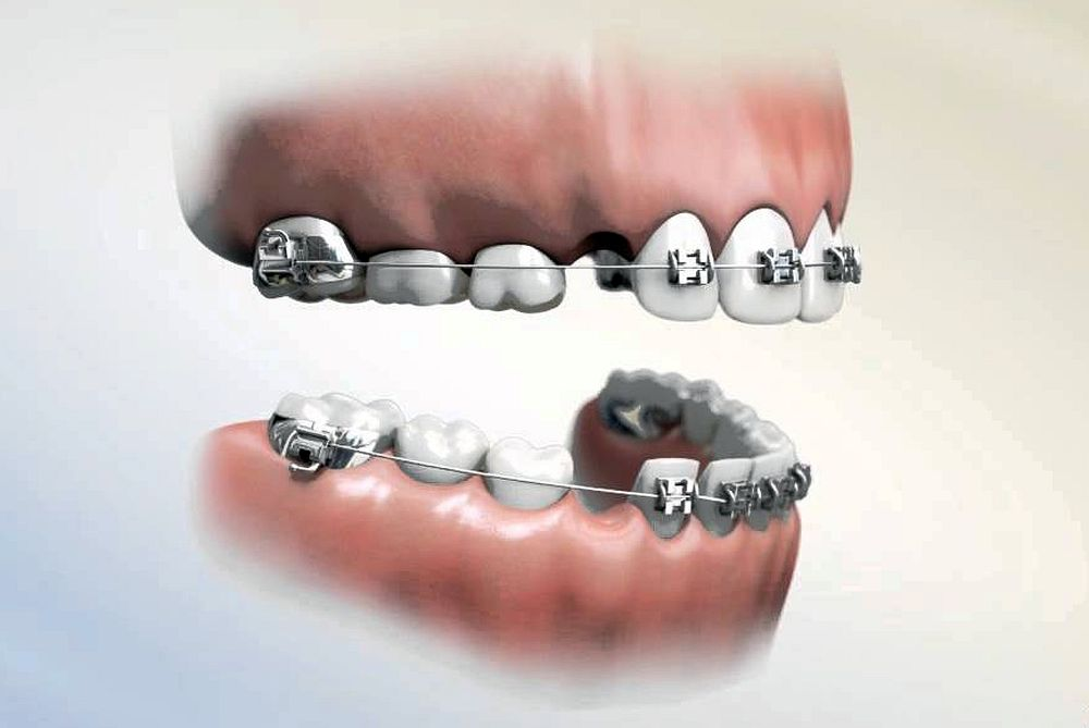Thông tin cần nắm nhỏ về việc niềng răng nhổ răng số 4