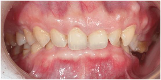 Sắp tháo niềng mà răng vẫn cụp – biến chứng chỉnh nha bạn phải biết