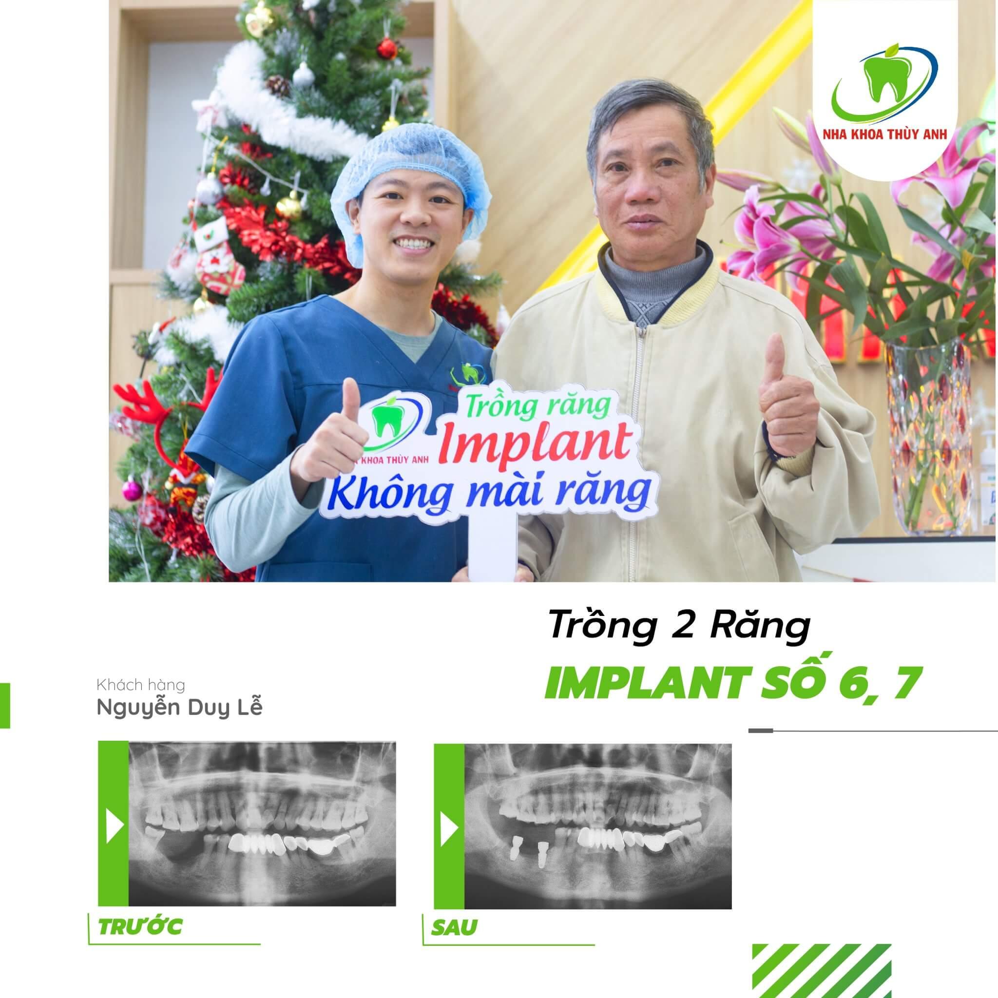 Cấy implant cho người huyết áp cao – Trồng răng an toàn cùng chuyên gia