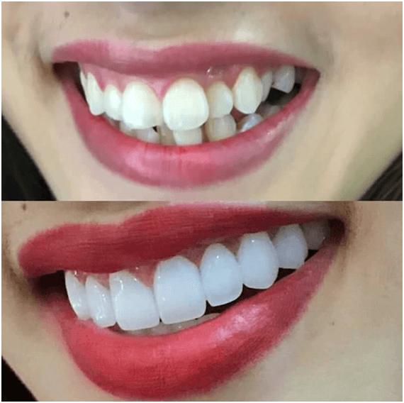 Những trường hợp không thể và không nên lạm dụng bọc răng sứ