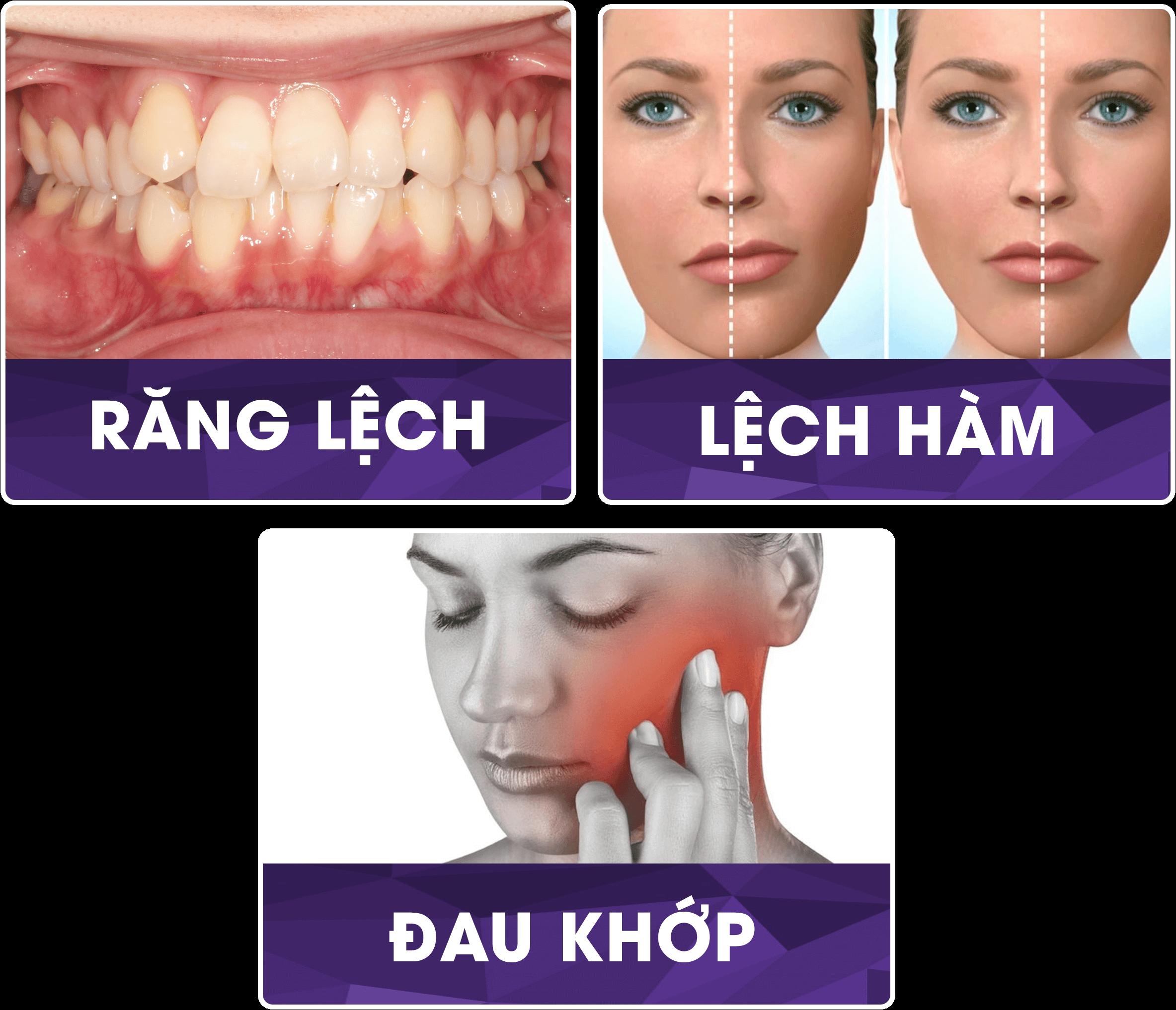 Niềng răng hỏng có niềng được lại không? 3 mức độ niềng răng hỏng