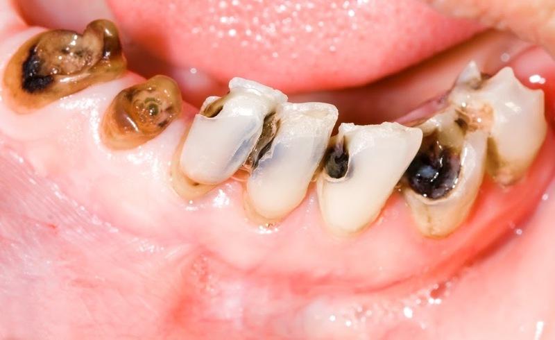 Sâu răng thì phải nhổ răng đi, liệu có đúng? Nha khoa Thùy Anh