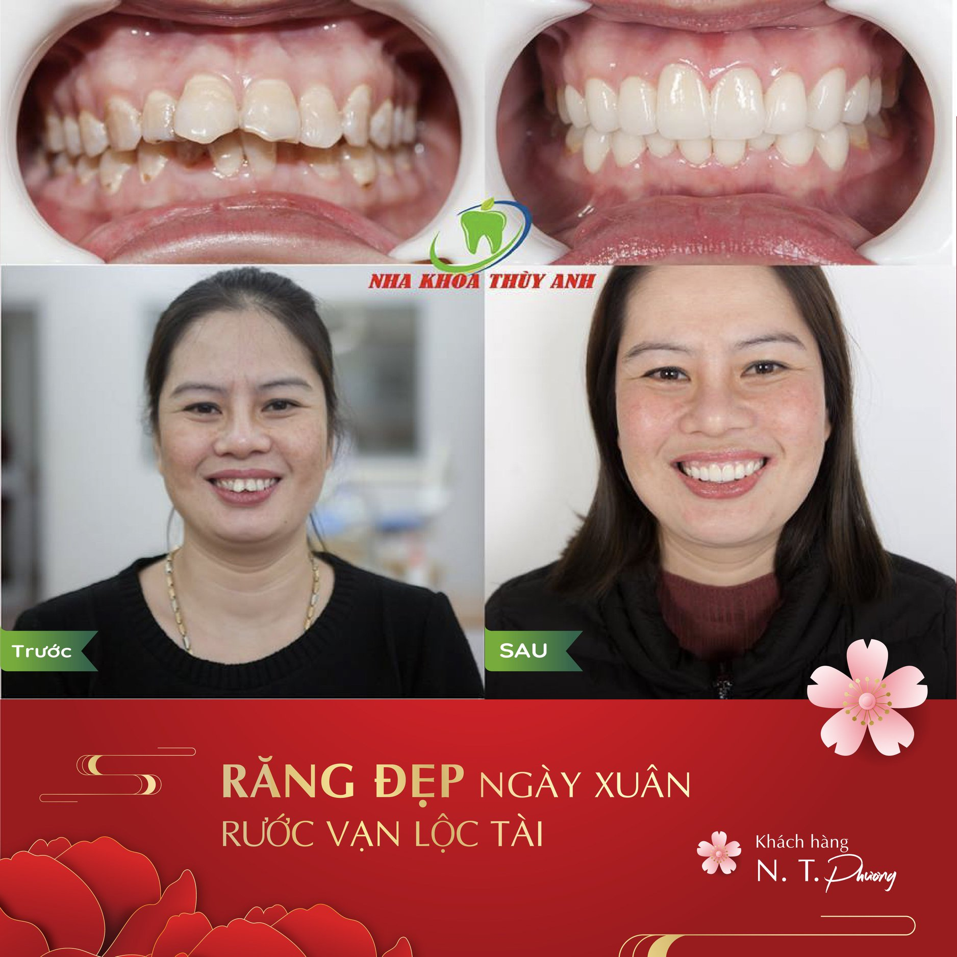 Những cách chăm sóc sau khi làm răng sứ đảm bảo độ bền trọn đời