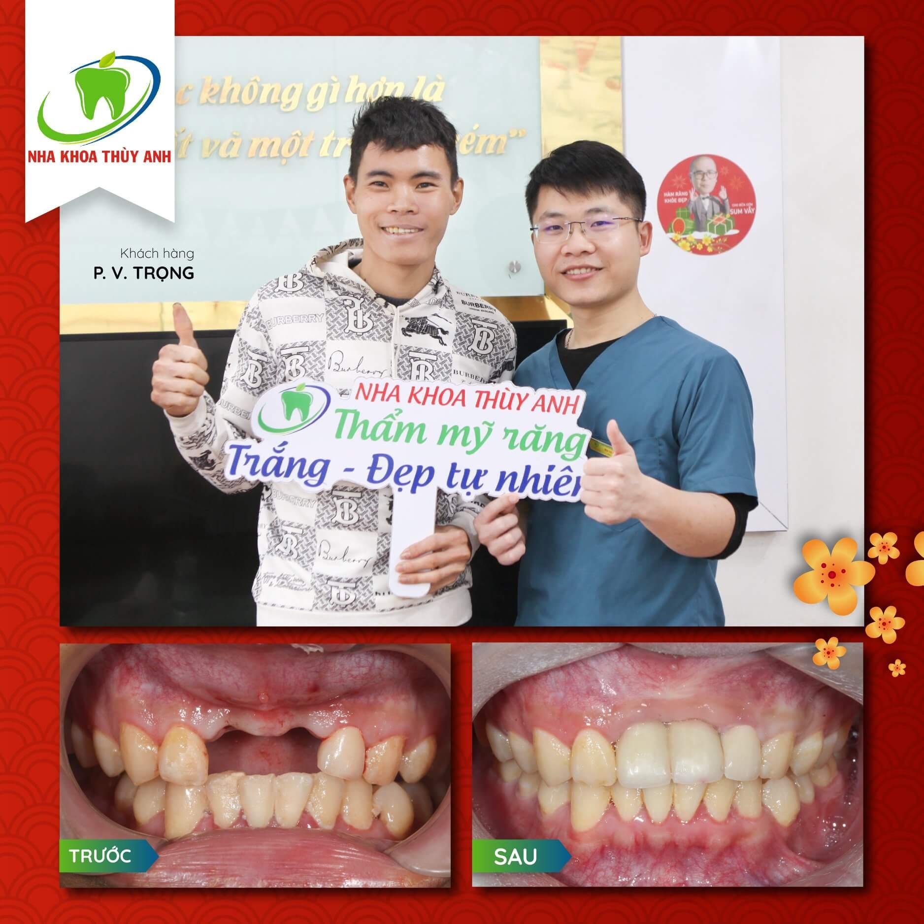 Gãy răng cửa: Cách khắc phục hiệu quả, thẩm mỹ và tiết kiệm