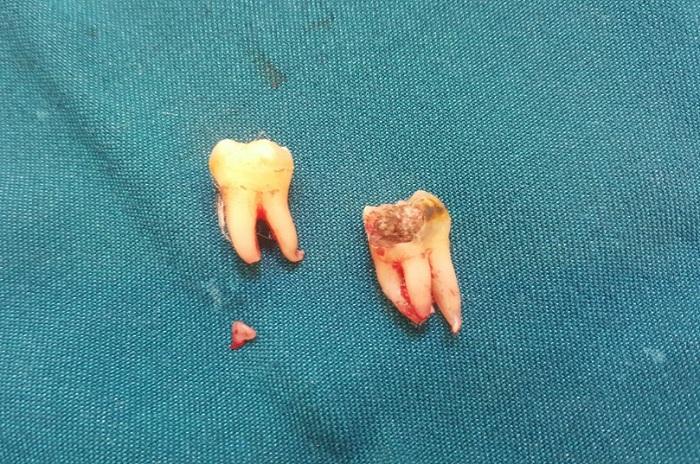 Nhổ 2 răng khôn cùng một lúc: Nên hay không? Nha khoa Thùy Anh