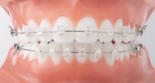 Thực hư vấn đề: Niềng răng mắc cài sứ sẽ không đau?