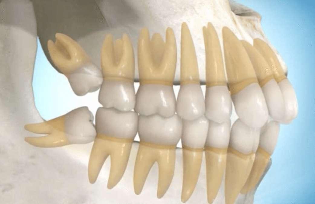 Những điều thú vị về răng khôn không phải ai cũng biết – nha khoa Thùy Anh