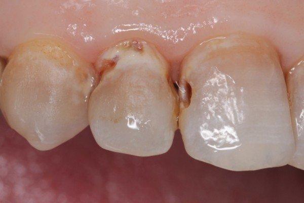 Sâu kẽ răng cửa: Phương án điều trị hiệu quả và tiết kiệm – nha khoa Thùy Anh