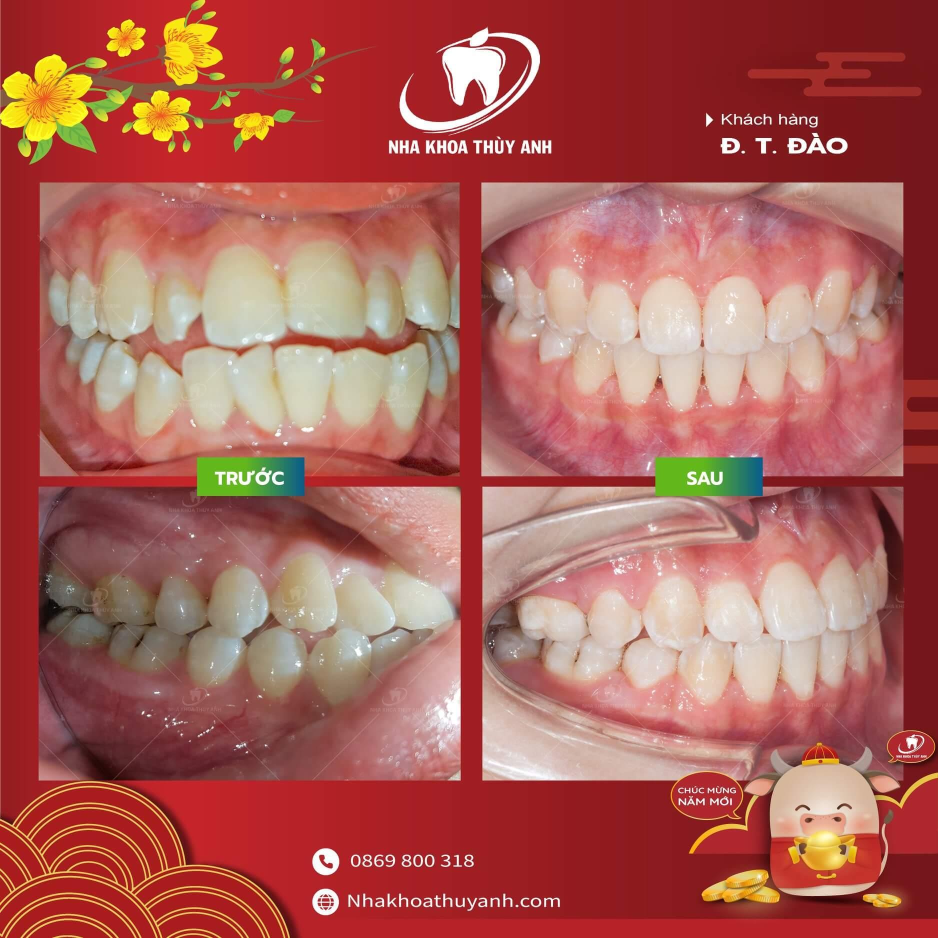 Tại sao răng thường mọc lệch lạc? Chữa bằng cách nào?