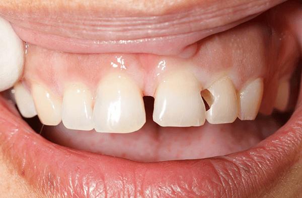 Sâu kẽ răng và phương pháp xử lý nhanh – hiệu quả – tiết kiệm