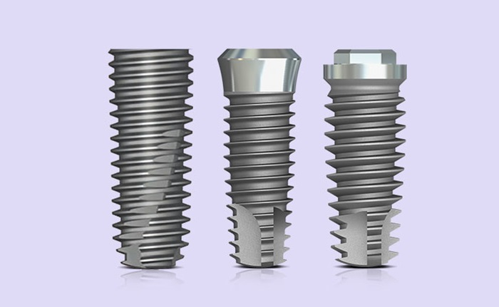 Trồng răng implant trọn gói chỉ 6.9tr.đ liệu có thực sự tốt?