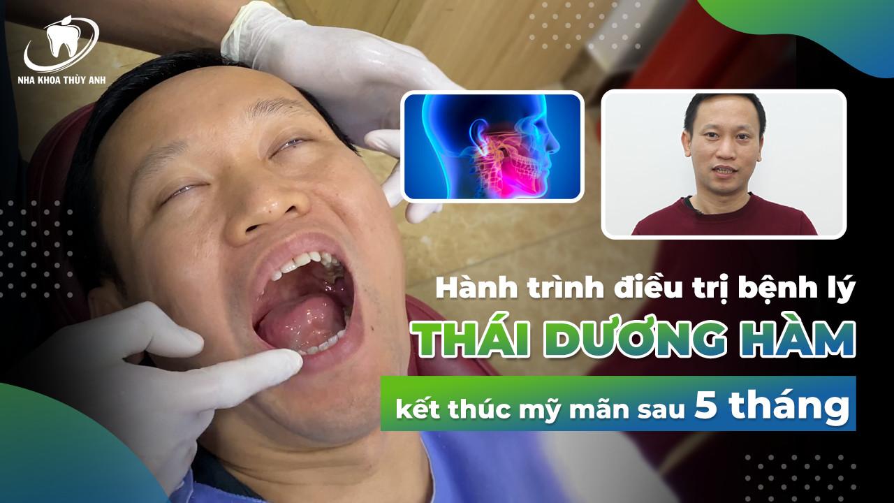 Kết quả viên mãn sau 5 tháng điều trị viêm khớp thái dương hàm, loại bỏ triệu chứng đau mỏi hàm, há miệng có tiếng kêu cho anh Hùng.
