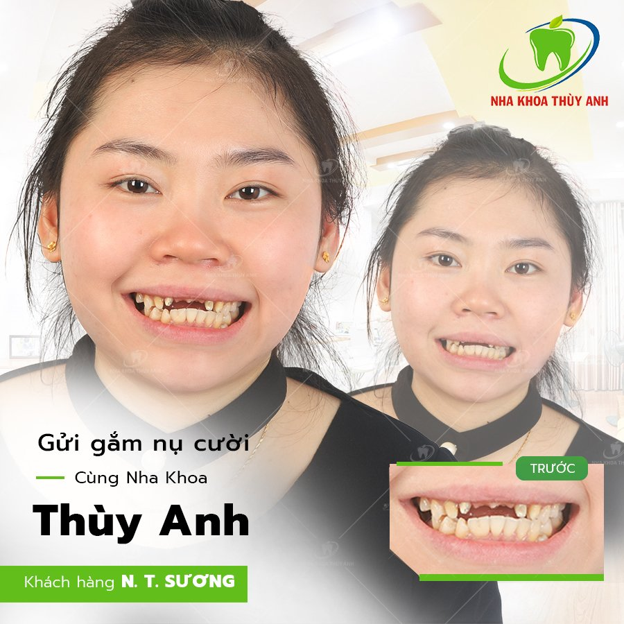 6 kiểu gãy răng cửa thường gặp và hướng khắc phục – nha khoa Thùy Anh