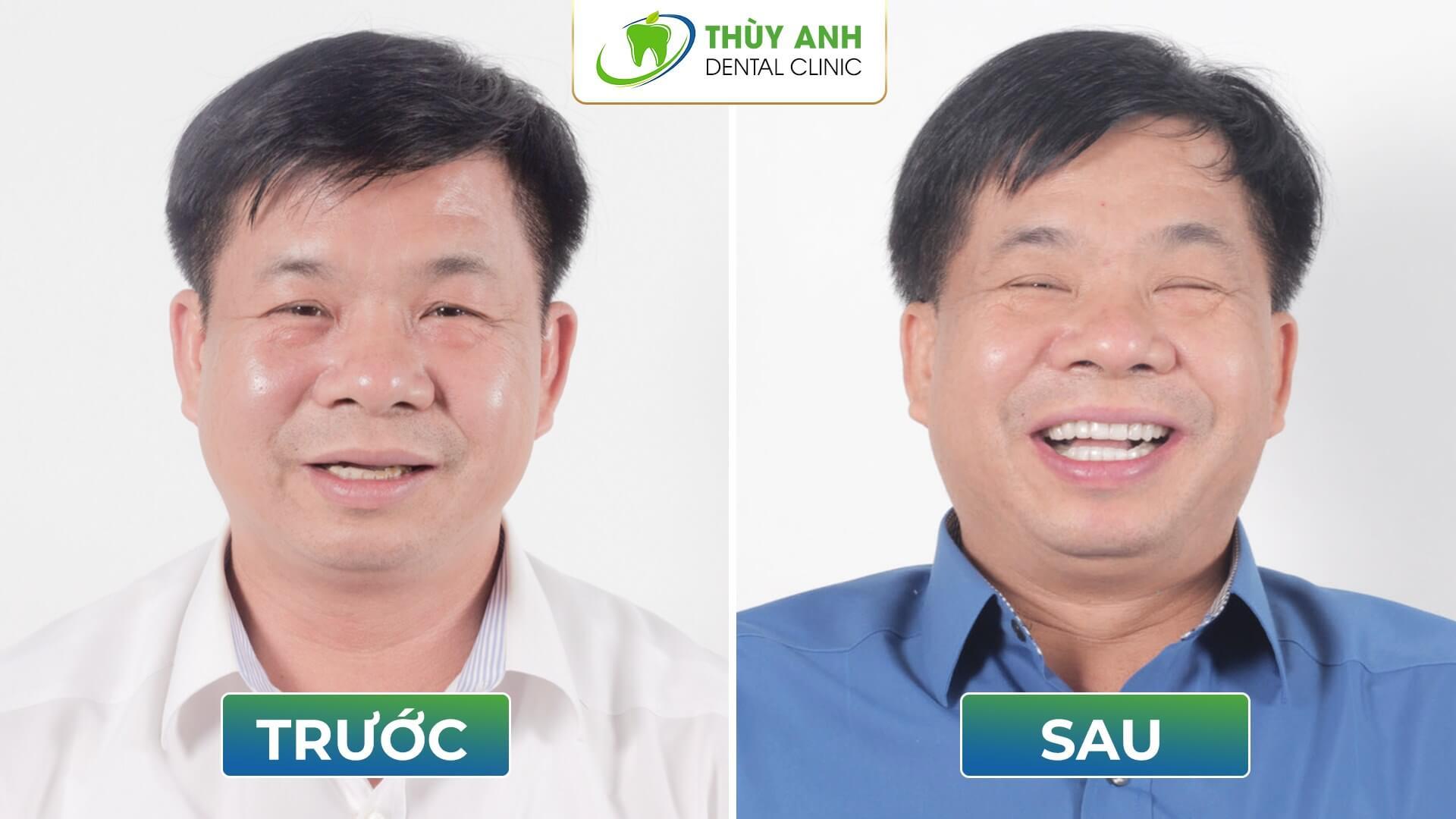 Mòn răng, mòn cả niềm vui và hành trình điều trị sau 6 năm đau đầu mãn tính, tìm lại niềm vui cuộc sống cho chú Tân
