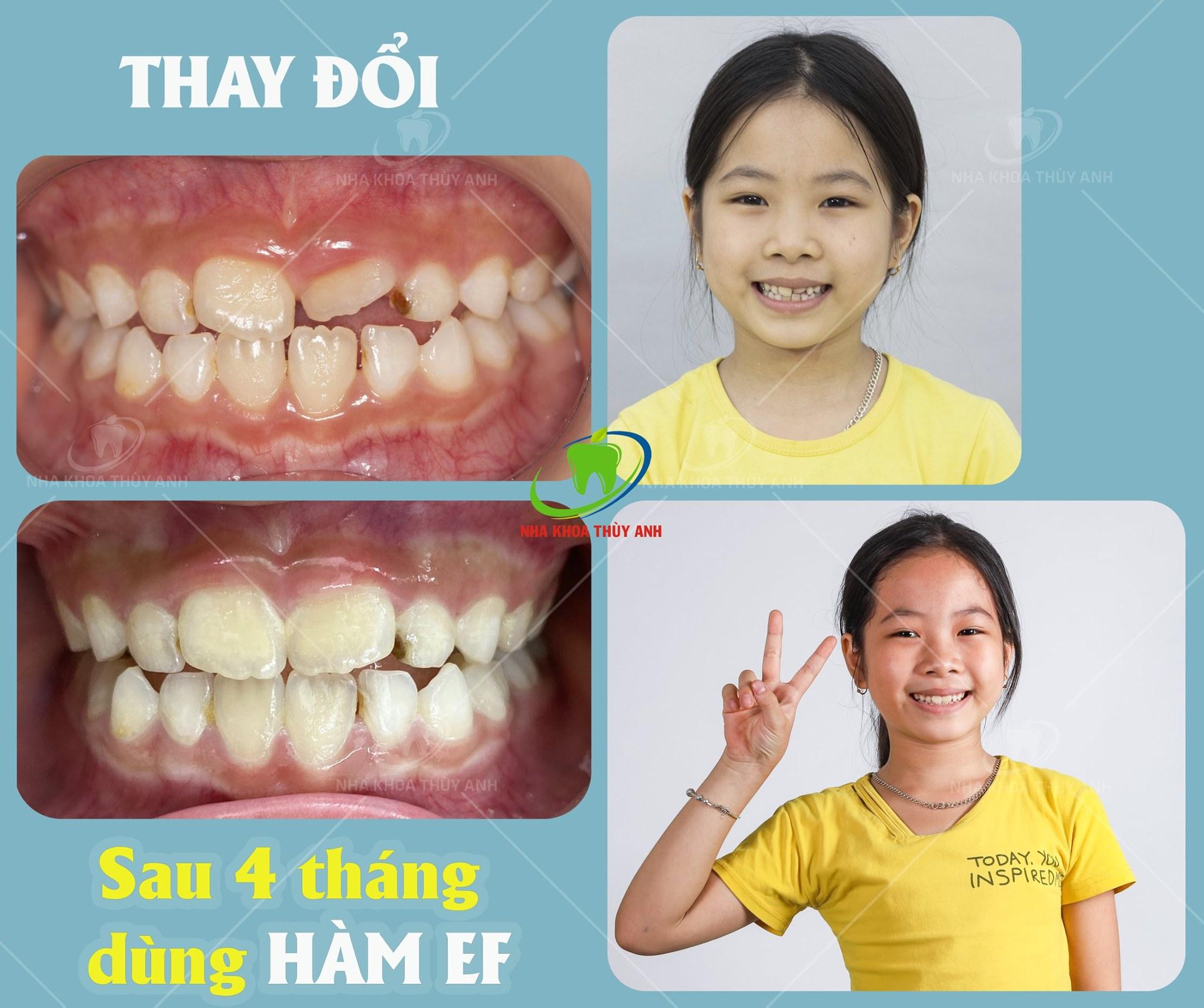 Niềng răng cho trẻ 8 tuổi có quá sớm hay không? Nha khoa Thùy Anh