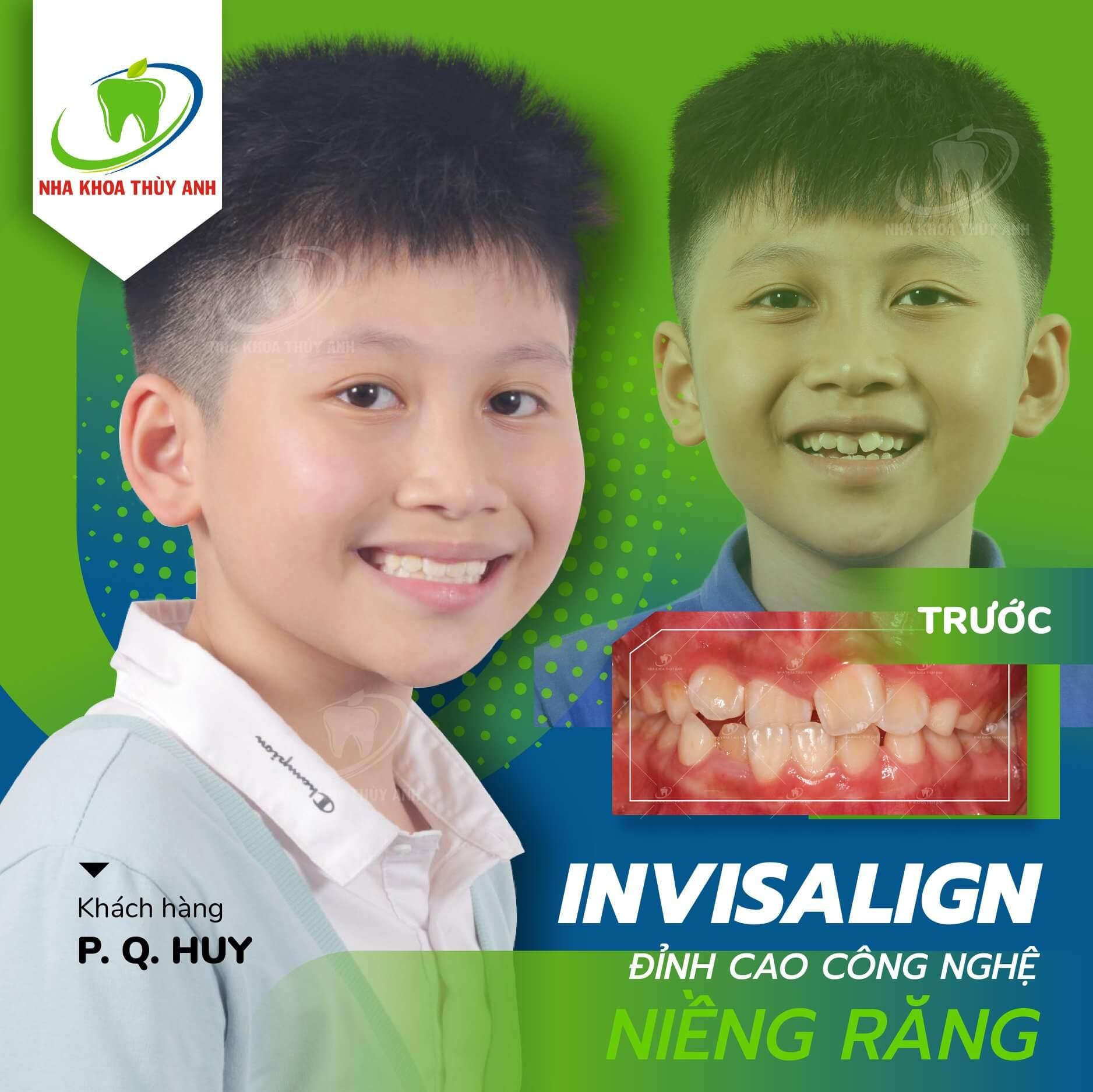 Niềng răng cho trẻ 13 tuổi ở đâu tốt nhất tại Hà Nội? Nha khoa Thùy Anh