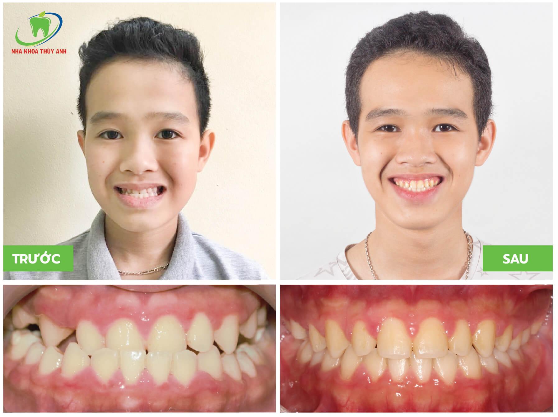 Niềng răng cho trẻ 15 tuổi giá bao nhiêu? Nha khoa Thùy Anh