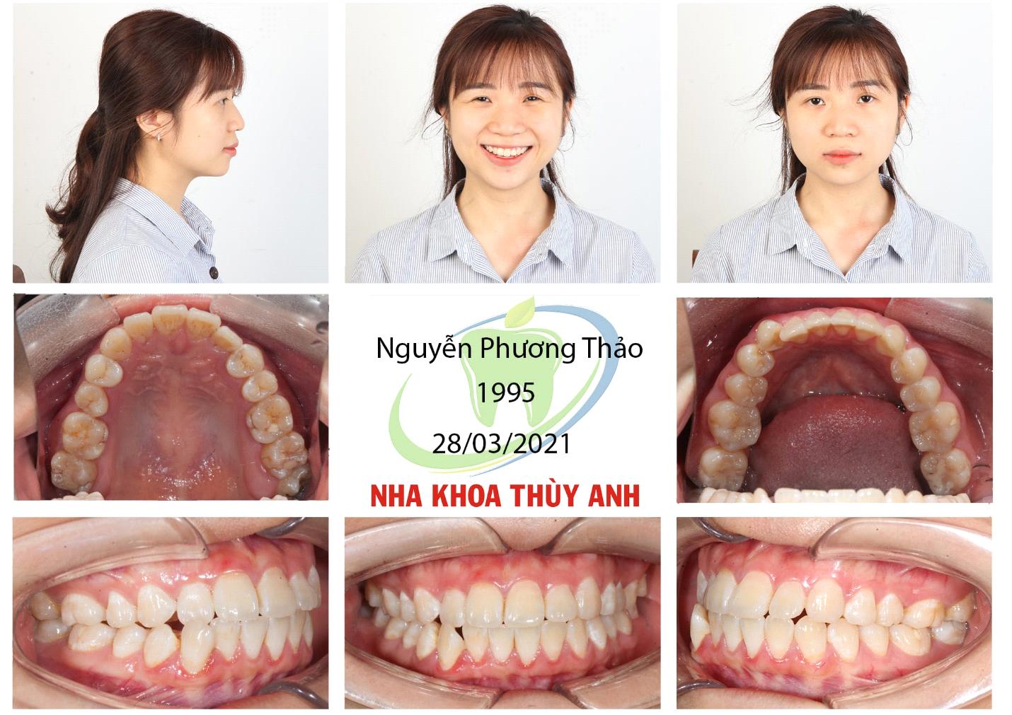 Các giai đoạn niềng răng: Bạn đang ở giai đoạn nào? Nha khoa Thùy Anh