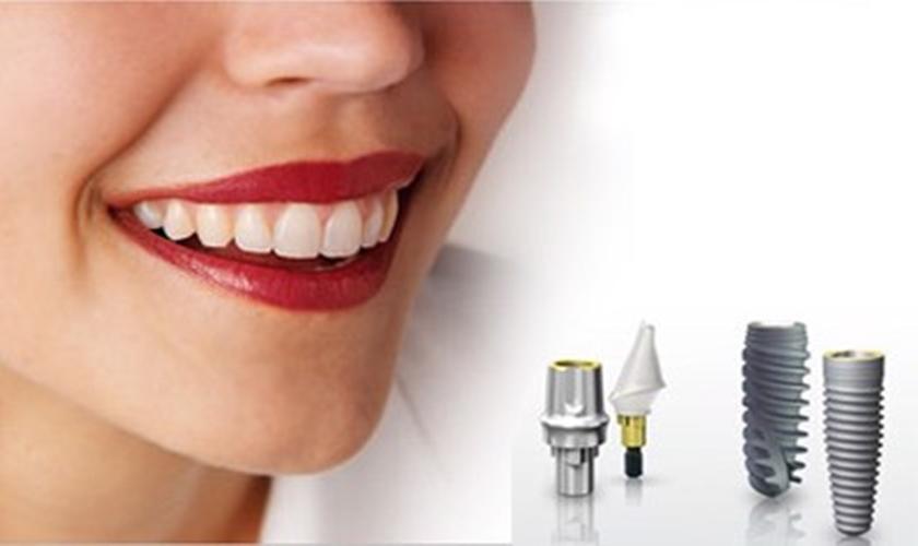 Tại sao có nhiều giá implant như vậy? Các hãng khác nhau thế nào